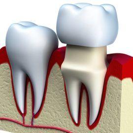 Korony stomatologiczne