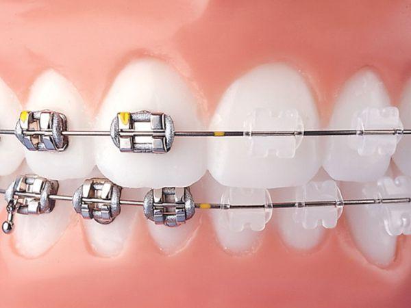 Zamki ortodontyczne metalowe i ceramiczne